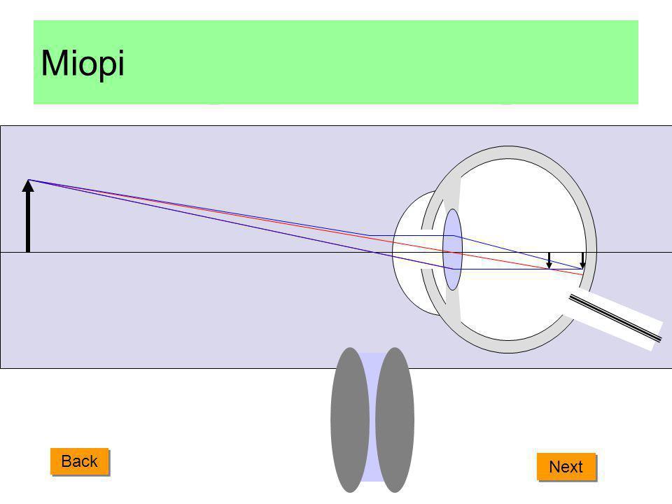 Cacat Mata Rabun jauh (miopi) Rabun jauh adalah kelainan mata karena bayangan benda-benda yang jauh jatuh di depan retina. Hal ini terjadi karena lens