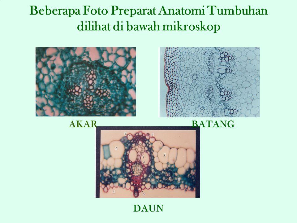 Beberapa Foto Preparat Anatomi Tumbuhan dilihat di bawah mikroskop AKAR DAUN BATANG