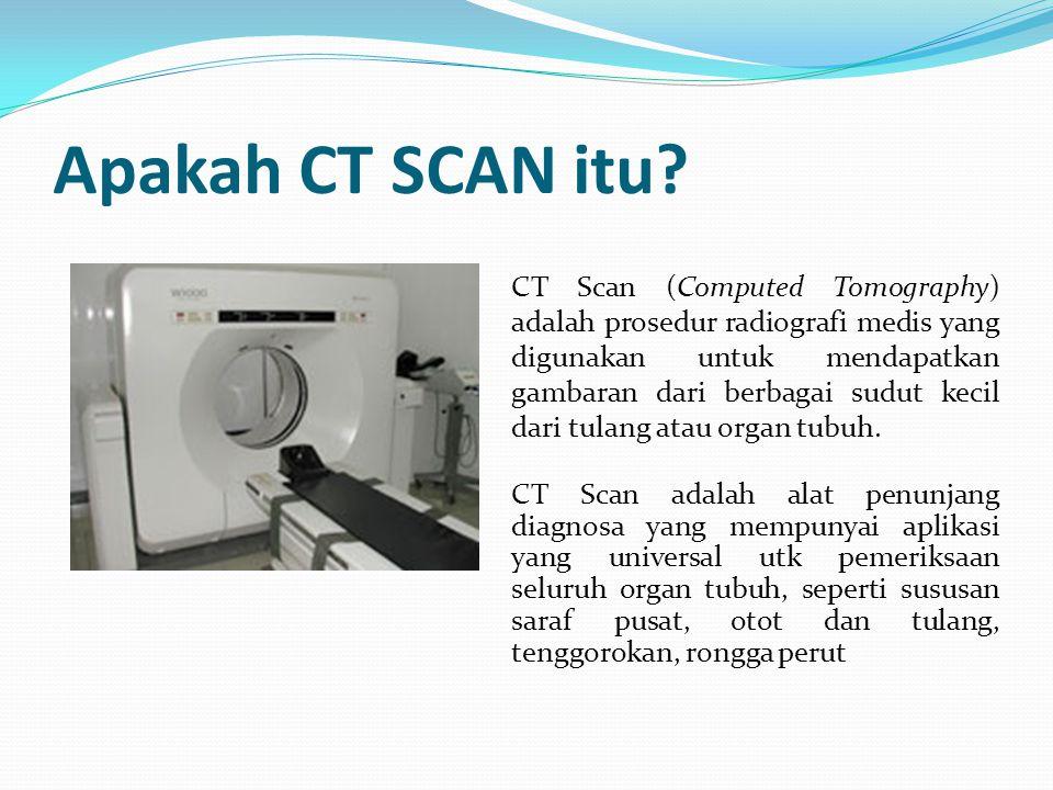 Apakah CT SCAN itu? CT Scan (Computed Tomography) adalah prosedur radiografi medis yang digunakan untuk mendapatkan gambaran dari berbagai sudut kecil