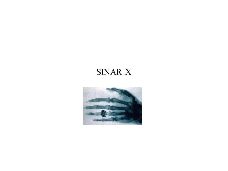 Sinar-X Sinar-X adalah nama yang diberikan kepada sinar yang sangat tajam yang dipancarkan ketika elektron energi tinggi menghantam target logam.