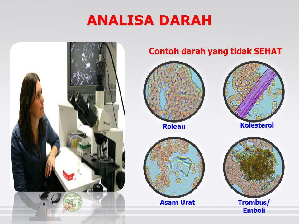 ANALISA DARAH Contoh darah yang tidak SEHAT Roleau Kolesterol Trombus/Emboli Asam Urat