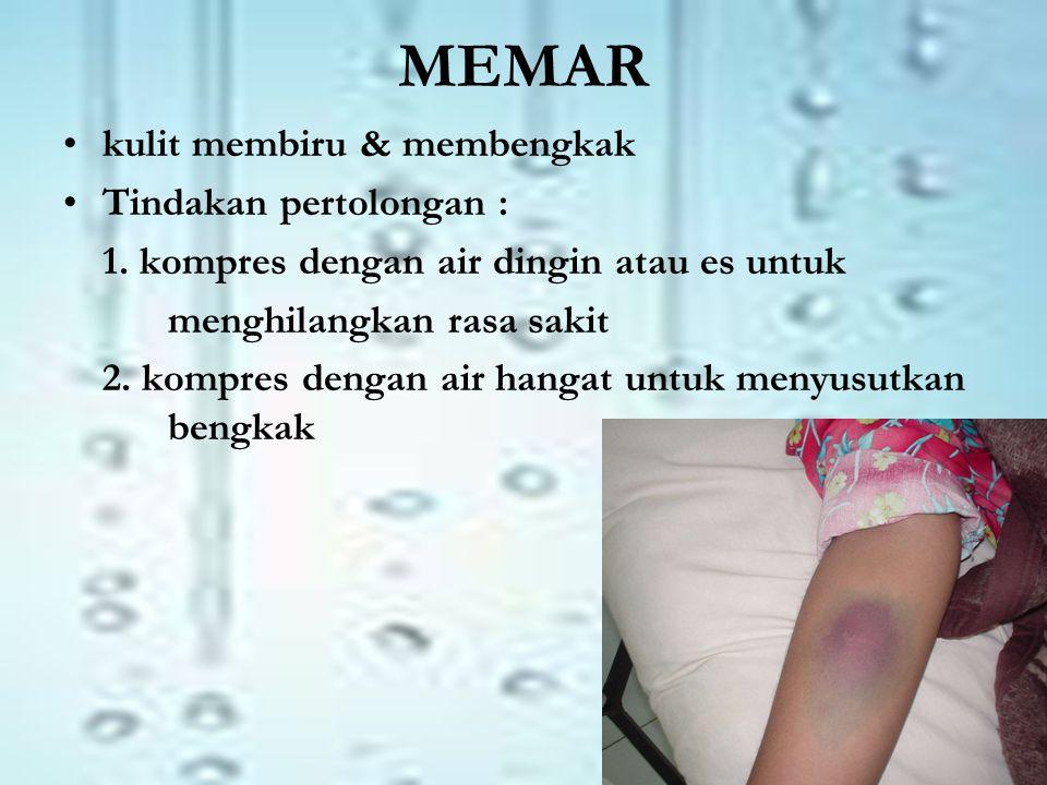 MEMAR •kulit membiru & membengkak •Tindakan pertolongan : 1.
