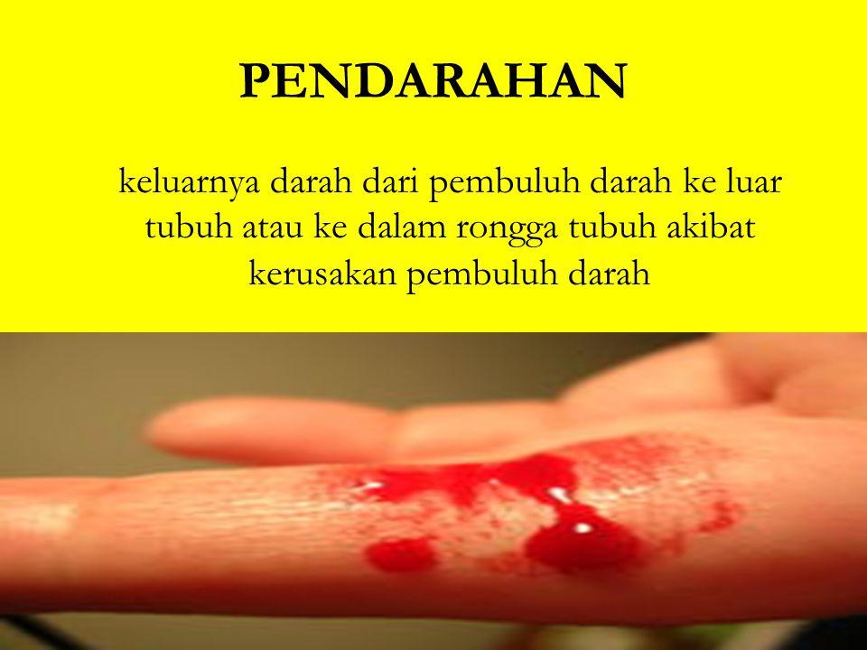 PENDARAHAN keluarnya darah dari pembuluh darah ke luar tubuh atau ke dalam rongga tubuh akibat kerusakan pembuluh darah