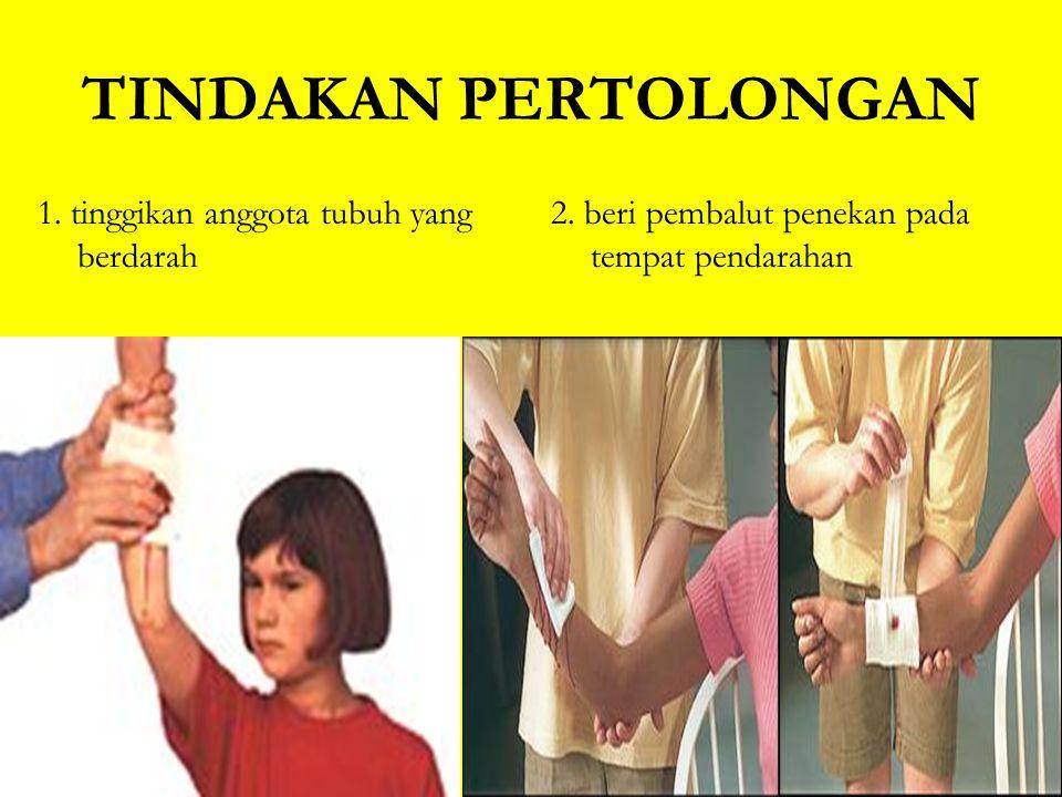 Patah tulang jari tangan –dapat dibidai dengan sendok es krim atau kawat tusuk konde –bila tidak terasa sakit bila membengkokkan jari, sebaiknya jari dibidai dalam kedudukan setengah melengkung