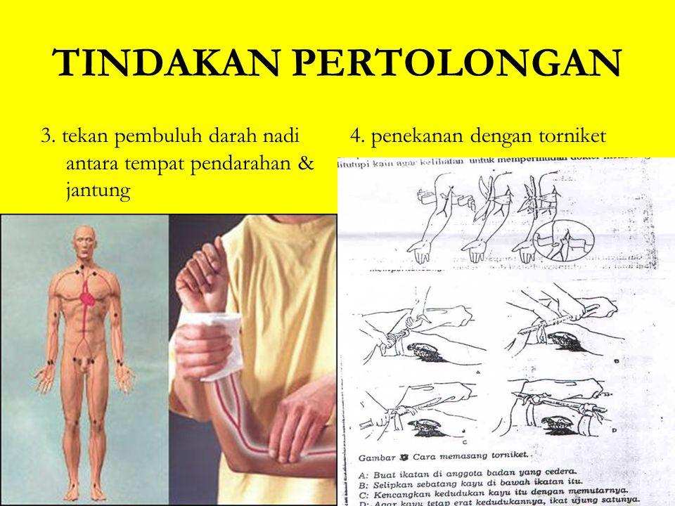 TINDAKAN PERTOLONGAN 3.tekan pembuluh darah nadi antara tempat pendarahan & jantung 4.