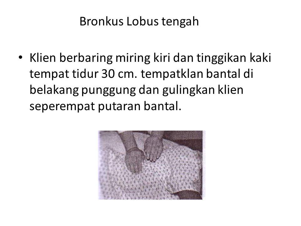Bronkus Lobus tengah • Klien berbaring miring kiri dan tinggikan kaki tempat tidur 30 cm. tempatklan bantal di belakang punggung dan gulingkan klien s