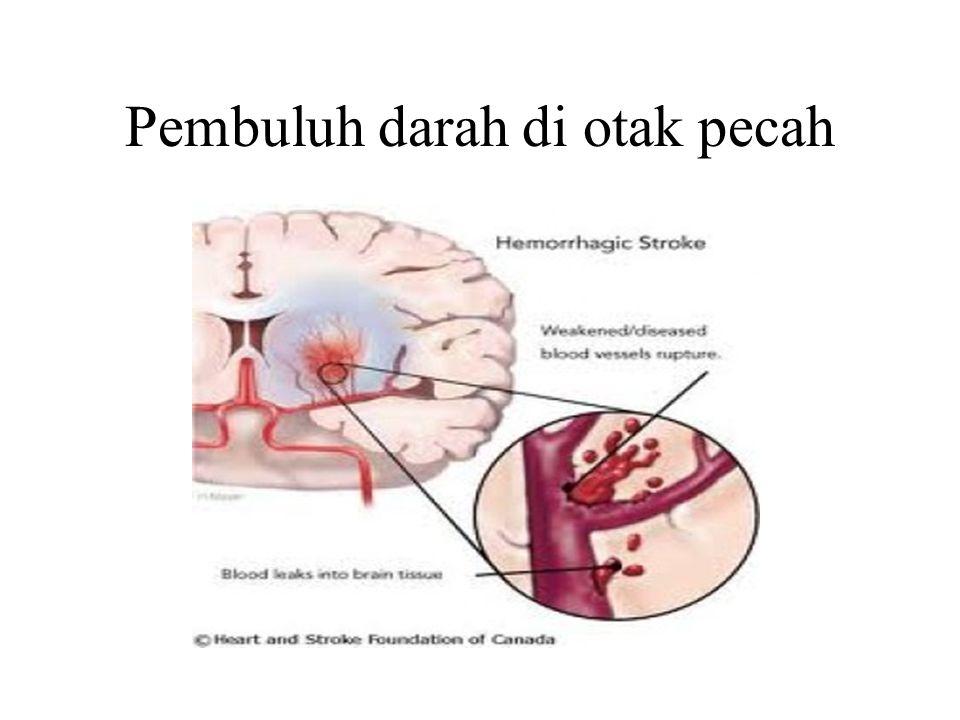 Pembuluh darah di otak pecah