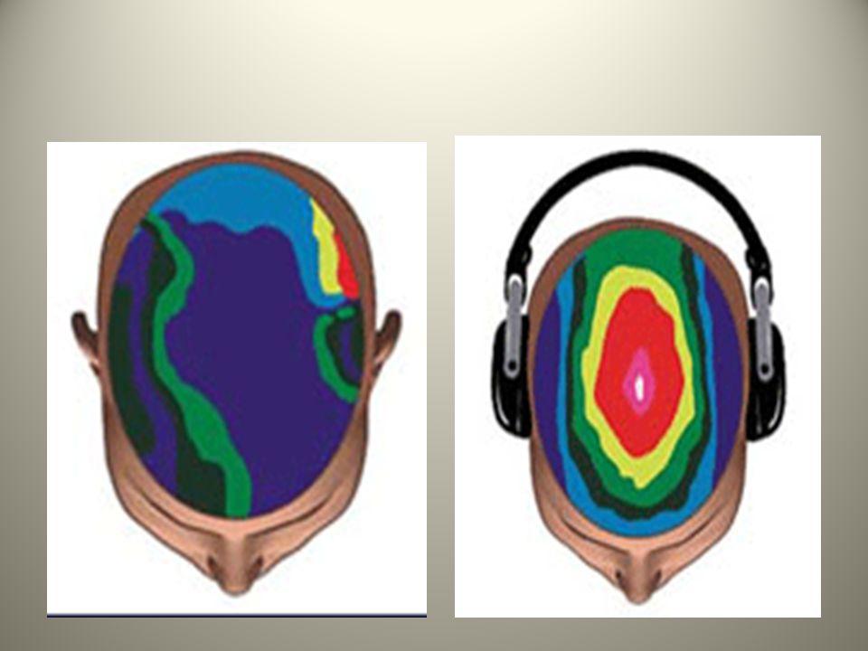 Bukti Ilmiah Aktivasi Gelombang Otak • Di bawah ini adalah gambar ilustrasi hasil pengamatan pola gelombang otak dengan EEG Brain Mapping sebelum dan