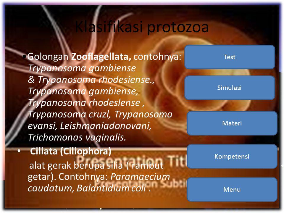 Klasifikasi protozoa •Golongan Zooflagellata, contohnya: Trypanosoma gambiense & Trypanosoma rhodesiense., Trypanosoma gambiense, Trypanosoma rhodesle