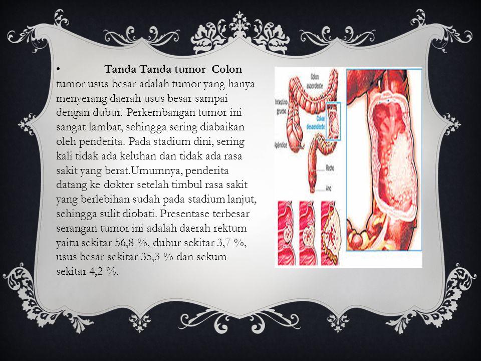 •Tanda Tanda tumor Colon tumor usus besar adalah tumor yang hanya menyerang daerah usus besar sampai dengan dubur. Perkembangan tumor ini sangat lamba