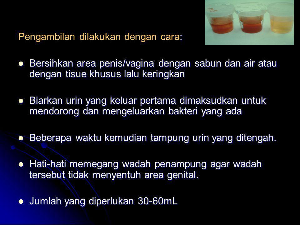 : Pengambilan dilakukan dengan cara:  Bersihkan area penis/vagina dengan sabun dan air atau dengan tisue khusus lalu keringkan  Biarkan urin yang ke