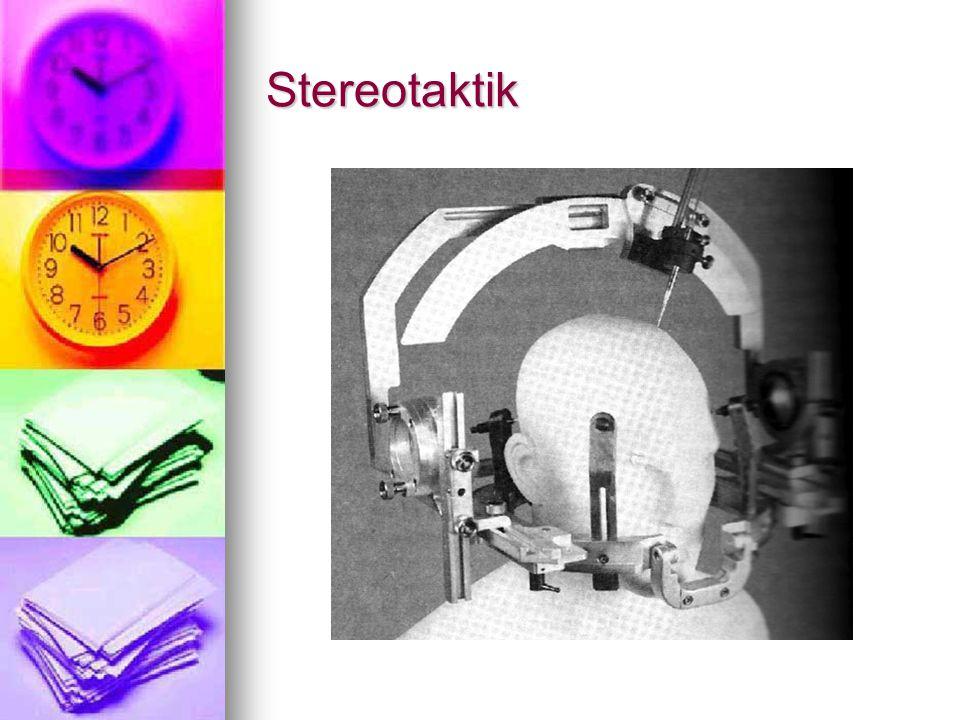 Stereotaktik