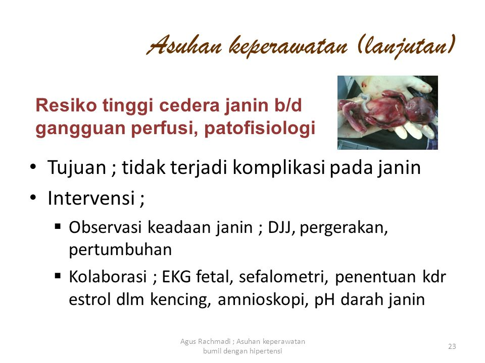 Asuhan keperawatan (lanjutan) 23 Agus Rachmadi ; Asuhan keperawatan bumil dengan hipertensi • Tujuan ; tidak terjadi komplikasi pada janin • Intervens