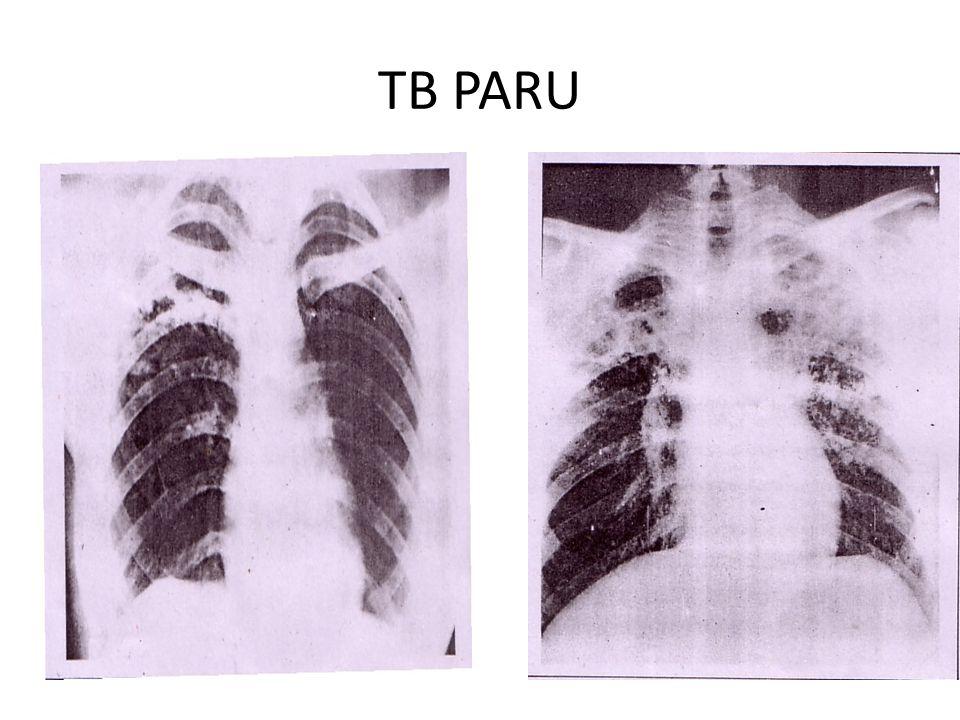TB PARU