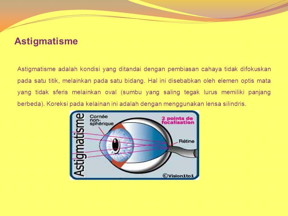 Astigmatisme Astigmatisme adalah kondisi yang ditandai dengan pembiasan cahaya tidak difokuskan pada satu titik, melainkan pada satu bidang. Hal ini d