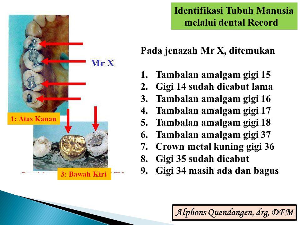 Pada jenazah Mr X, ditemukan 1.Tambalan amalgam gigi 15 2.Gigi 14 sudah dicabut lama 3.Tambalan amalgam gigi 16 4.Tambalan amalgam gigi 17 5.Tambalan amalgam gigi 18 6.Tambalan amalgam gigi 37 7.Crown metal kuning gigi 36 8.Gigi 35 sudah dicabut 9.Gigi 34 masih ada dan bagus 1: Atas Kanan 3: Bawah Kiri Identifikasi Tubuh Manusia melalui dental Record Alphons Quendangen, drg, DFM