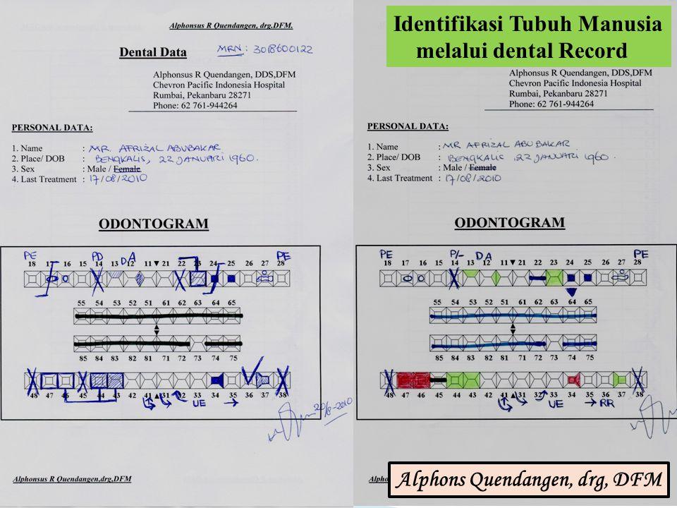 Identifikasi Tubuh Manusia melalui dental Record Alphons Quendangen, drg, DFM
