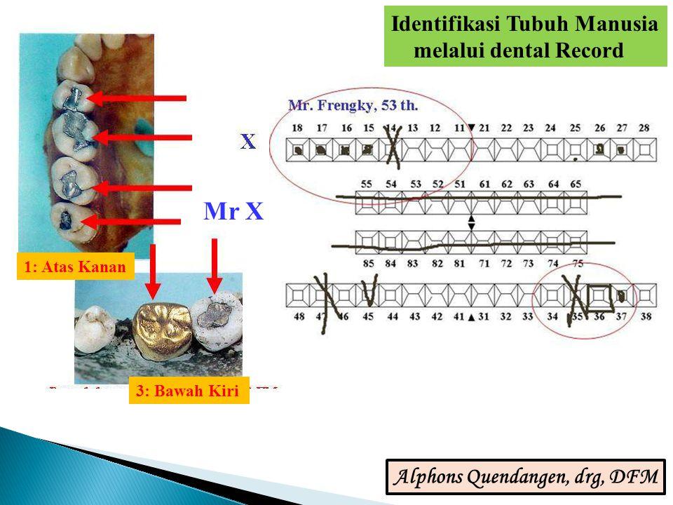 Mr X 1: Atas Kanan 3: Bawah Kiri Identifikasi Tubuh Manusia melalui dental Record Alphons Quendangen, drg, DFM