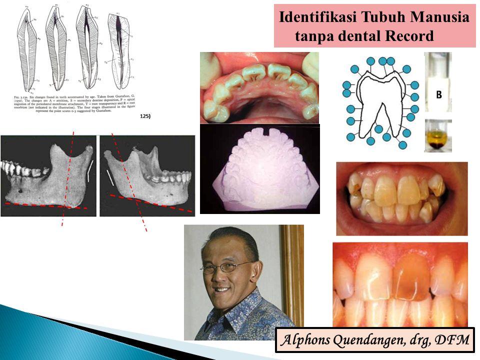 Identifikasi Tubuh Manusia tanpa dental Record Alphons Quendangen, drg, DFM