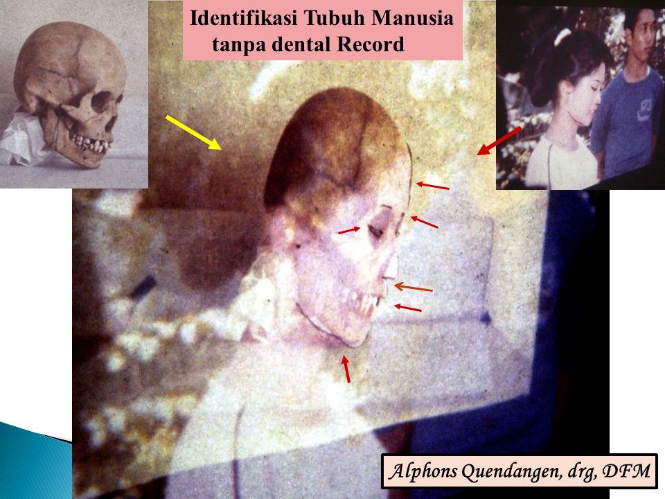 Superimposisi: Alphonsus R Quendangen Identifikasi Tubuh Manusia tanpa dental Record Alphons Quendangen, drg, DFM