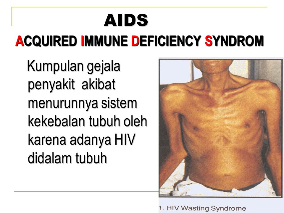 Kumpulan gejala penyakit akibat menurunnya sistem kekebalan tubuh oleh karena adanya HIV didalam tubuh Kumpulan gejala penyakit akibat menurunnya sist