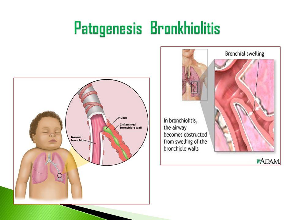 • Berdasar Klinis ( keluhan dan gejala ) • Berdasar Radiologis ( Thoraks foto ) • Berdasar RSV testing dg Direct Immunofluorosence ( diambil dari aspirat nasopharing ), memiliki sensiti vitas 61% dan spesifisitads 89%