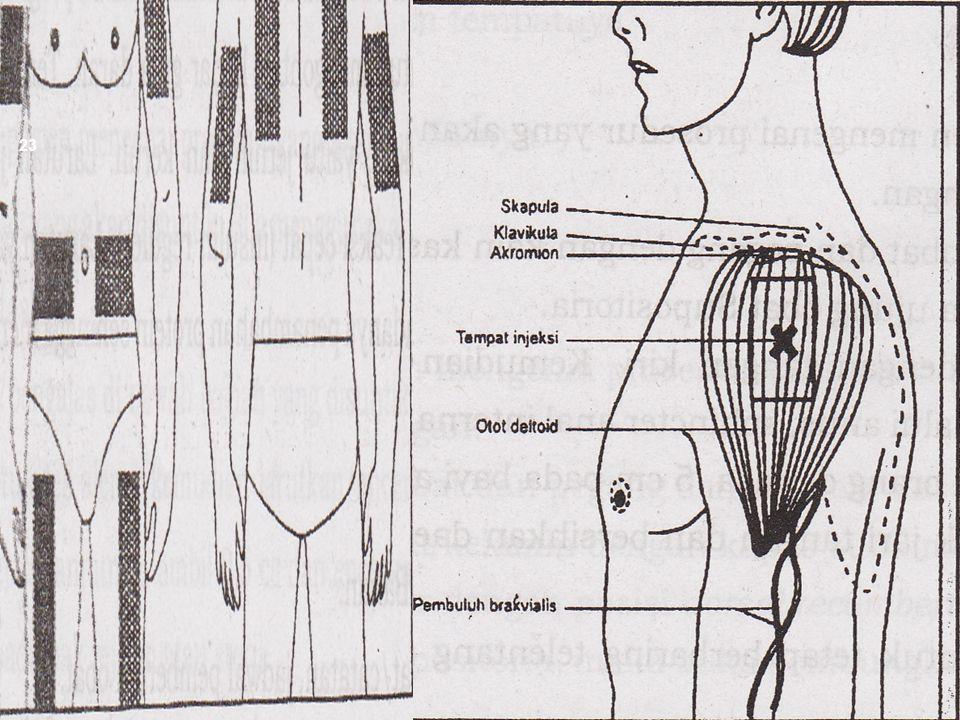 PENGERTIAN Suntikan subcutan Yaitu menyuntikan obat di bawah kulit.