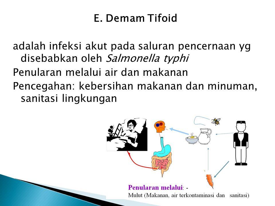 E. Demam Tifoid adalah infeksi akut pada saluran pencernaan yg disebabkan oleh Salmonella typhi Penularan melalui air dan makanan Pencegahan: kebersih