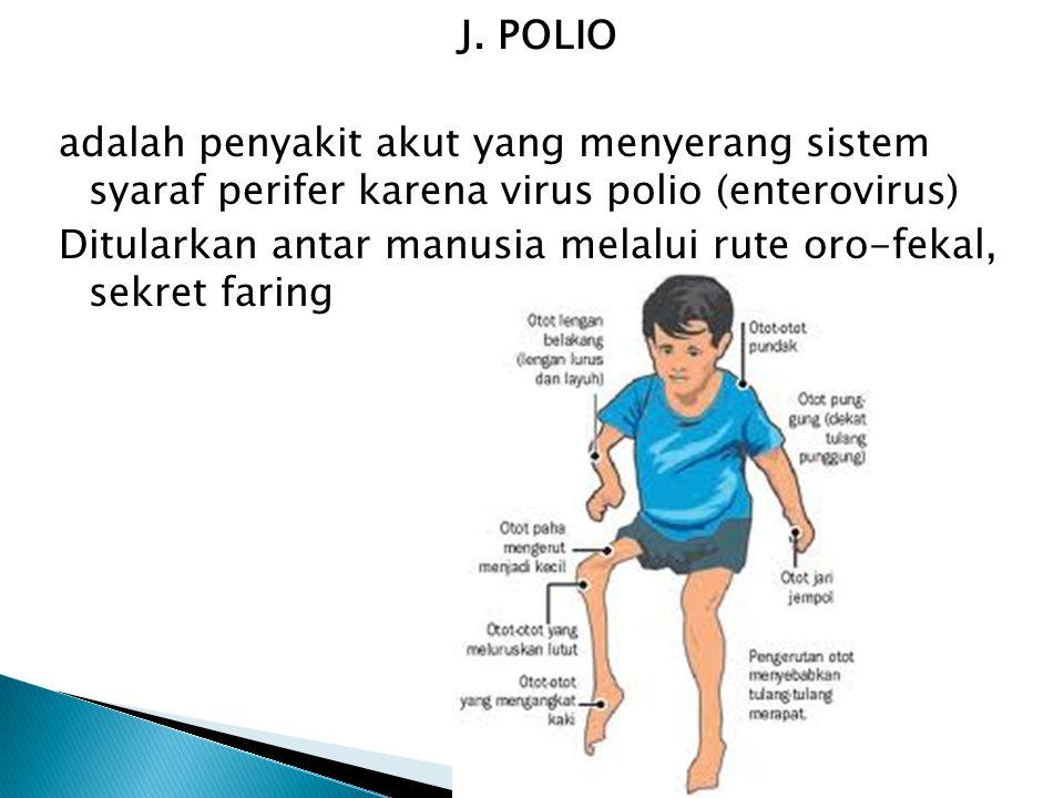 J. POLIO adalah penyakit akut yang menyerang sistem syaraf perifer karena virus polio (enterovirus) Ditularkan antar manusia melalui rute oro-fekal, s