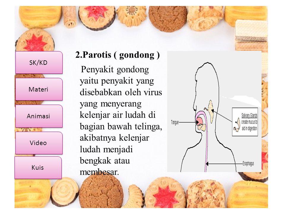 SK/KD Video Materi Animasi Kuis 2.Parotis ( gondong ) Penyakit gondong yaitu penyakit yang disebabkan oleh virus yang menyerang kelenjar air ludah di
