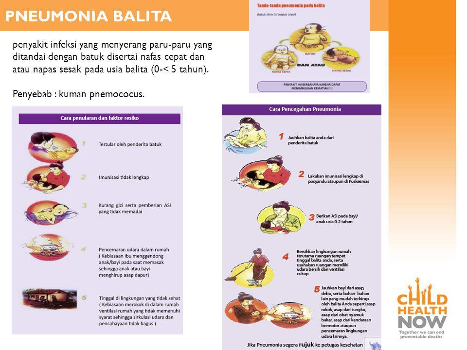 PNEUMONIA BALITA penyakit infeksi yang menyerang paru-paru yang ditandai dengan batuk disertai nafas cepat dan atau napas sesak pada usia balita (0-<