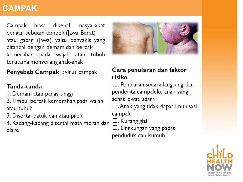 CAMPAK Campak biasa dikenal masyarakat dengan sebutan tampek (Jawa Barat) atau gabag (Jawa) yaitu penyakit yang ditandai dengan demam dan bercak kemer
