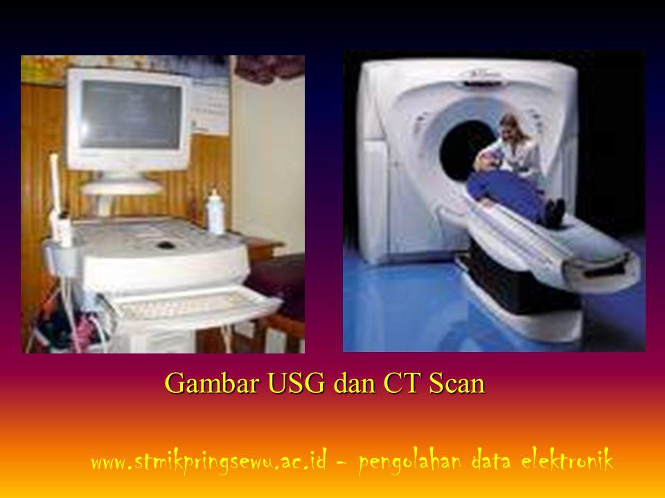 Gambar USG dan CT Scan www.stmikpringsewu.ac.id - pengolahan data elektronik