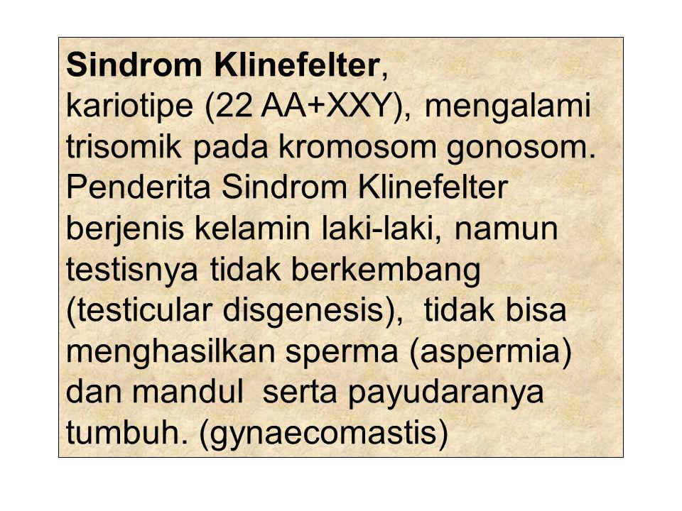 Sindrom Klinefelter, kariotipe (22 AA+XXY), mengalami trisomik pada kromosom gonosom. Penderita Sindrom Klinefelter berjenis kelamin laki-laki, namun