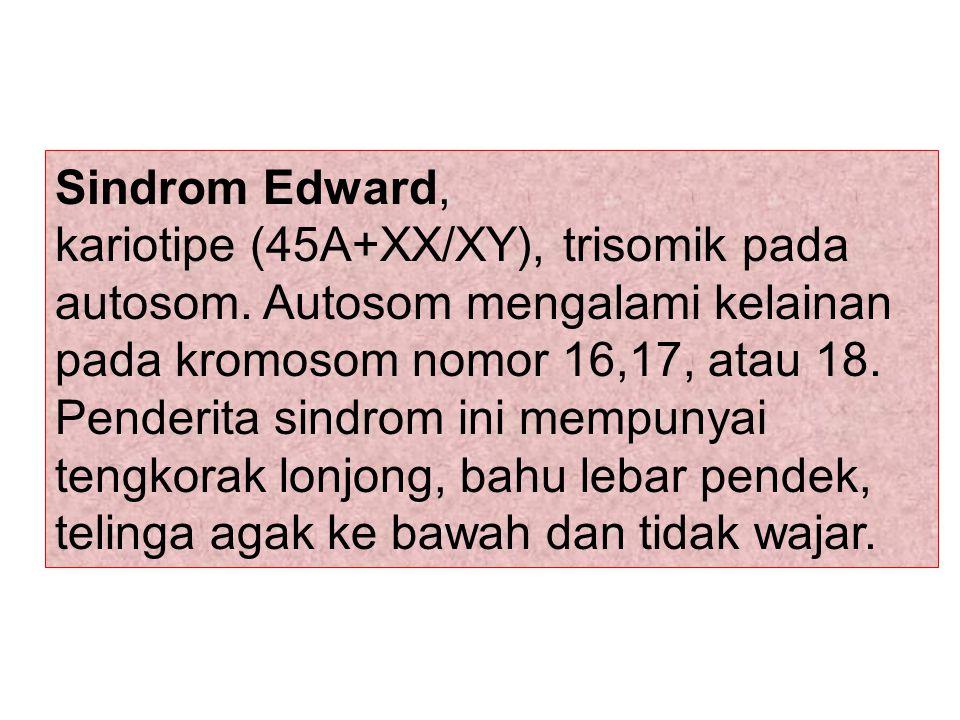 Sindrom Edward, kariotipe (45A+XX/XY), trisomik pada autosom. Autosom mengalami kelainan pada kromosom nomor 16,17, atau 18. Penderita sindrom ini mem