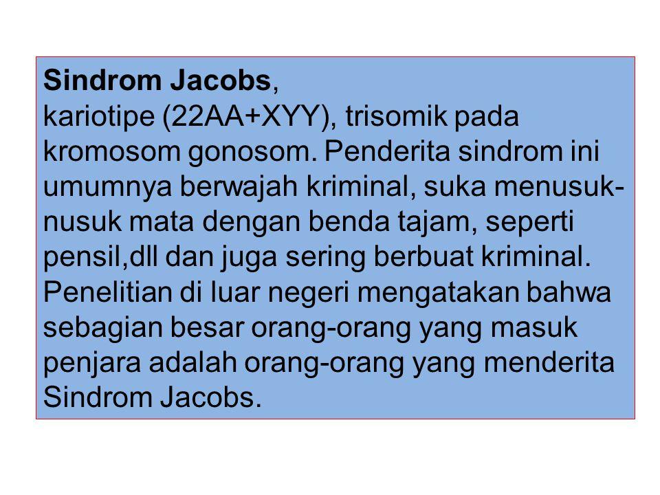 Sindrom Jacobs, kariotipe (22AA+XYY), trisomik pada kromosom gonosom. Penderita sindrom ini umumnya berwajah kriminal, suka menusuk- nusuk mata dengan