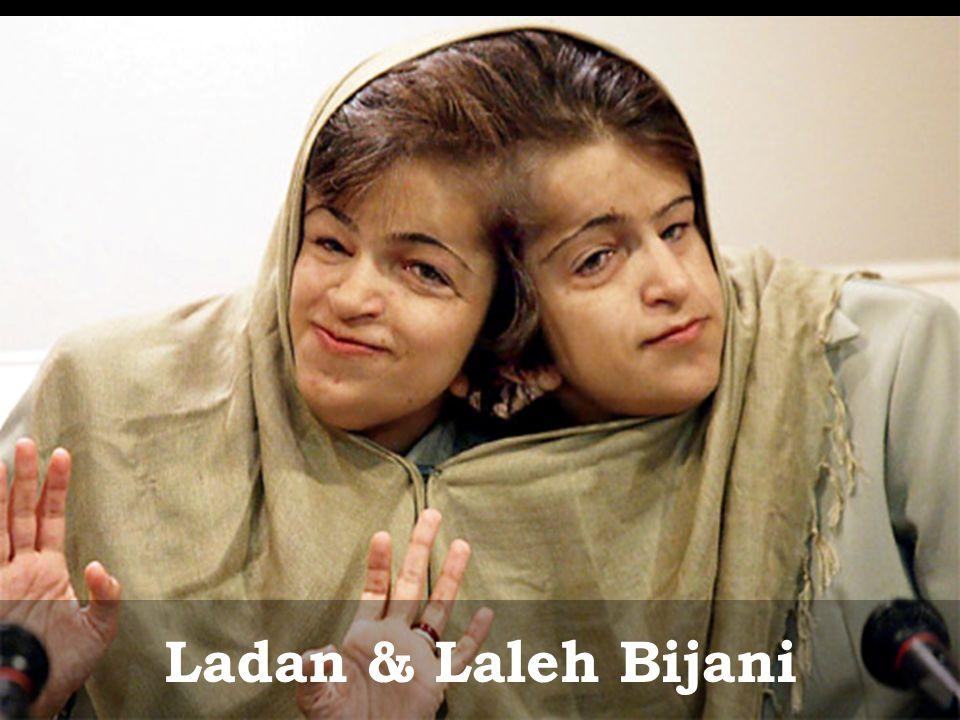 Ladan & Laleh Bijani