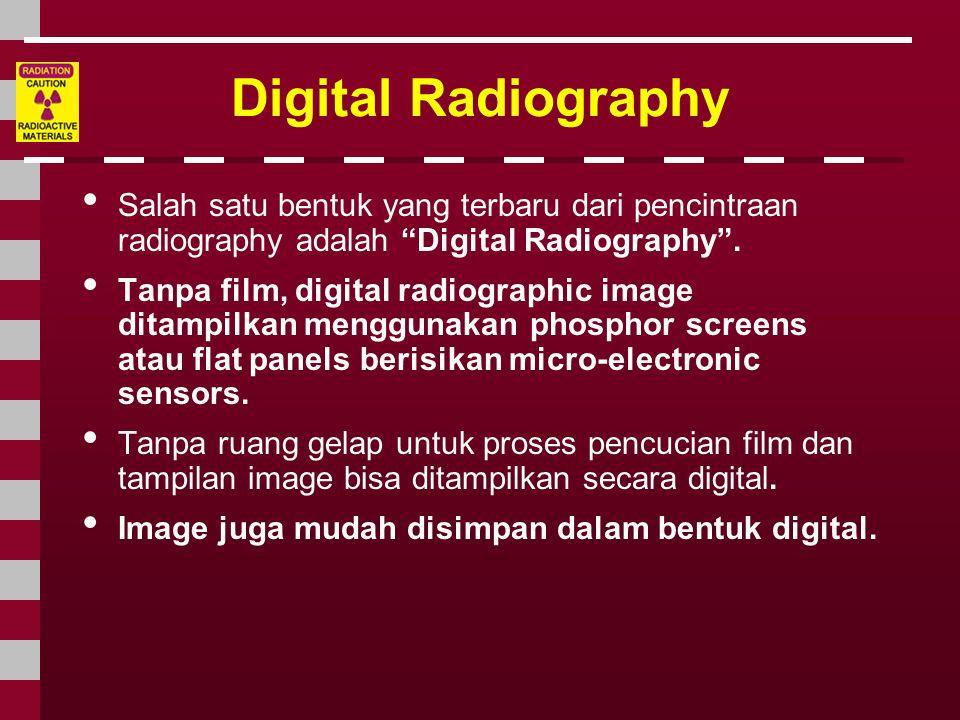 """Digital Radiography • Salah satu bentuk yang terbaru dari pencintraan radiography adalah """"Digital Radiography"""". • Tanpa film, digital radiographic ima"""