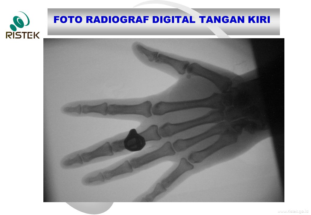 www.ristek.go.id FOTO RADIOGRAF DIGITAL TANGAN KIRI