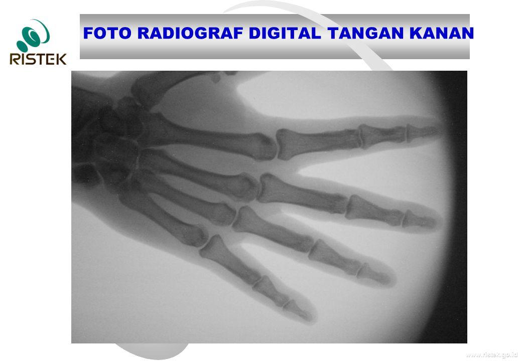 www.ristek.go.id FOTO RADIOGRAF DIGITAL TANGAN KANAN