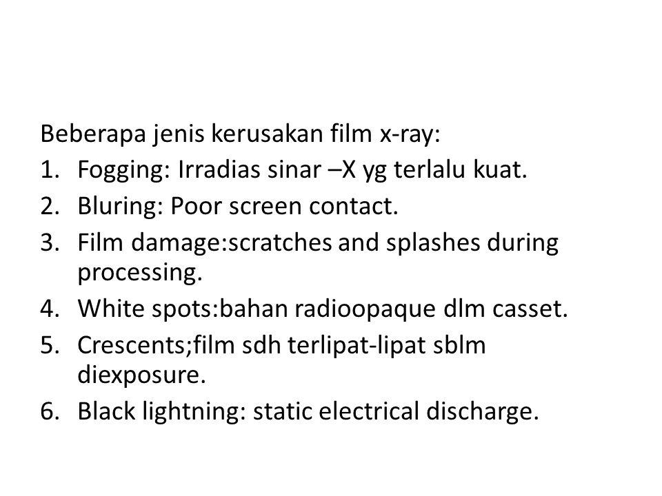 Beberapa jenis kerusakan film x-ray: 1.Fogging: Irradias sinar –X yg terlalu kuat. 2.Bluring: Poor screen contact. 3.Film damage:scratches and splashe
