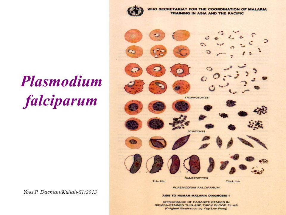 Plasmodium falciparum Yoes P. Dachlan/Kuliah-S1/2013