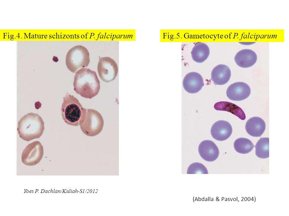 Fig.4. Mature schizonts of P. falciparum (Abdalla & Pasvol, 2004) Fig.5. Gametocyte of P. falciparum Yoes P. Dachlan/Kuliah-S1/2012