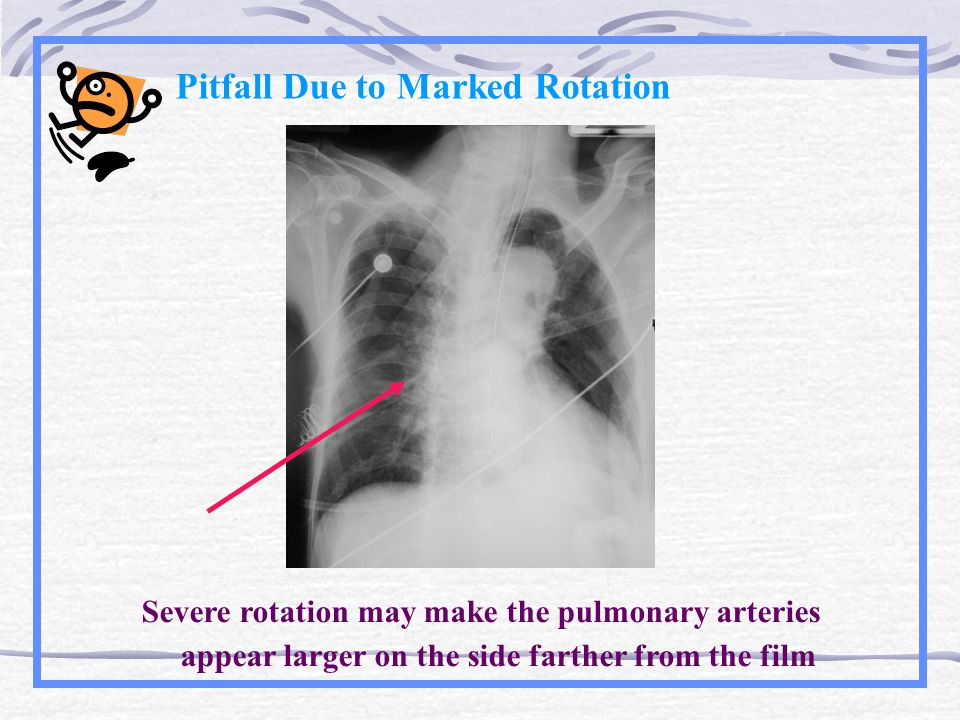 Pitfall Due to Marked Rotation Severe rotation may make the pulmonary arteries appear larger on the side farther from the film