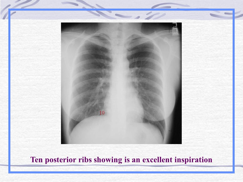 10 Ten posterior ribs showing is an excellent inspiration