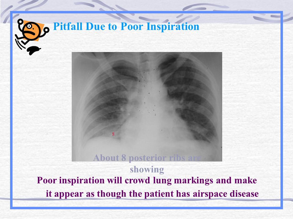 Pitfall Due to Poor Inspiration Poor inspiration will crowd lung markings and make it appear as though the patient has airspace disease About 8 posterior ribs are showing 8