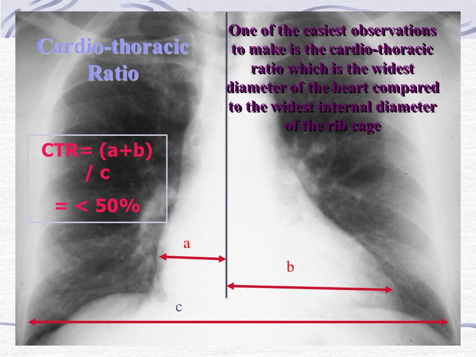 Cardio-thoracic Ratio CTR= (a+b) / c = < 50% One of the easiest observations to make is the cardio-thoracic ratio which is the widest diameter of the heart compared to the widest internal diameter of the rib cage a b c