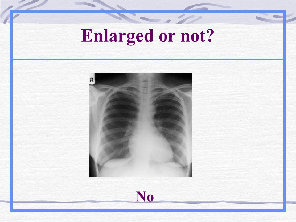 Enlarged or not? No