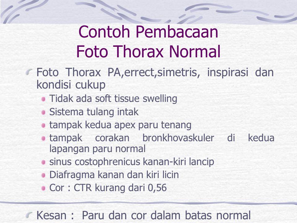Contoh Pembacaan Foto Thorax Normal Foto Thorax PA,errect,simetris, inspirasi dan kondisi cukup Tidak ada soft tissue swelling Sistema tulang intak ta