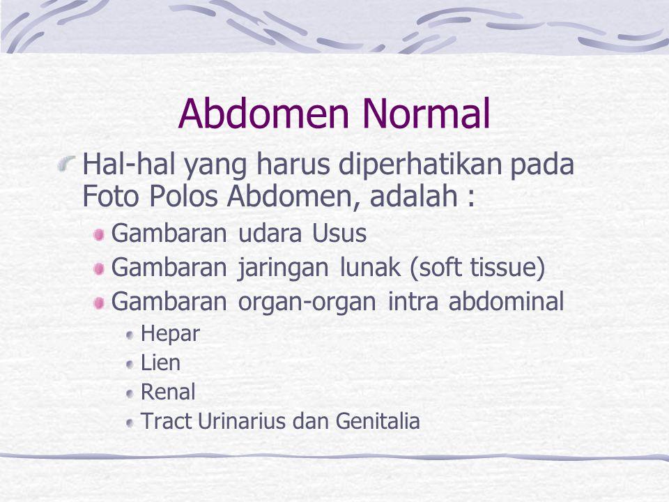 Abdomen Normal Hal-hal yang harus diperhatikan pada Foto Polos Abdomen, adalah : Gambaran udara Usus Gambaran jaringan lunak (soft tissue) Gambaran or